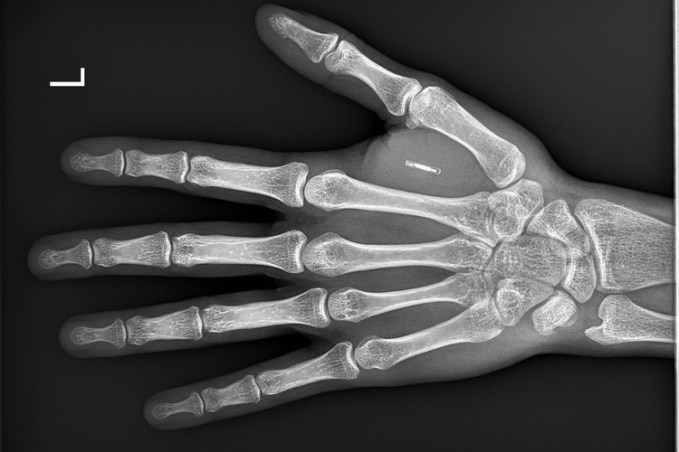 The Future of Microchip Implants in Humans