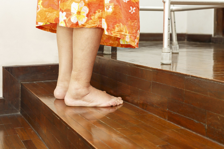 Assistive Stairs: The New Solution for People with Mobility Difficulties
